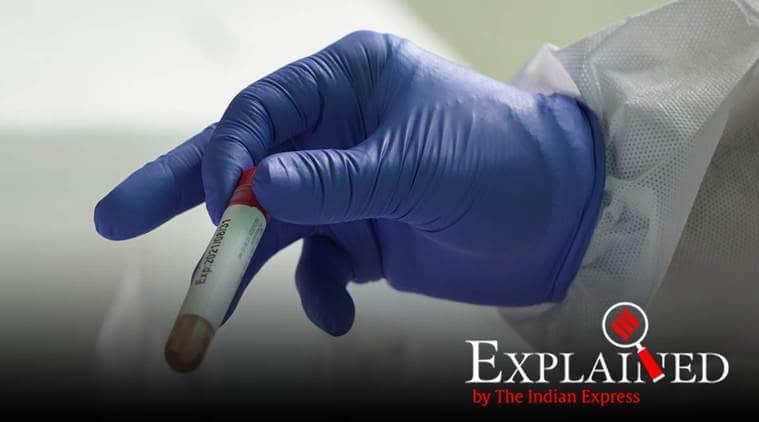 coronavirus test, covid-19 test, coronavirus india, covid-19 india explained, covid-19 test, coronavirus latest news updates