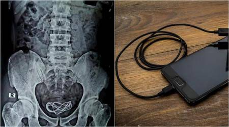 phone charger in urinary tract, man inserts phone charger in penis, man inserts charger for sexual pleasure, doctor remove phone charger from man urinary bladder, odd news, viral news
