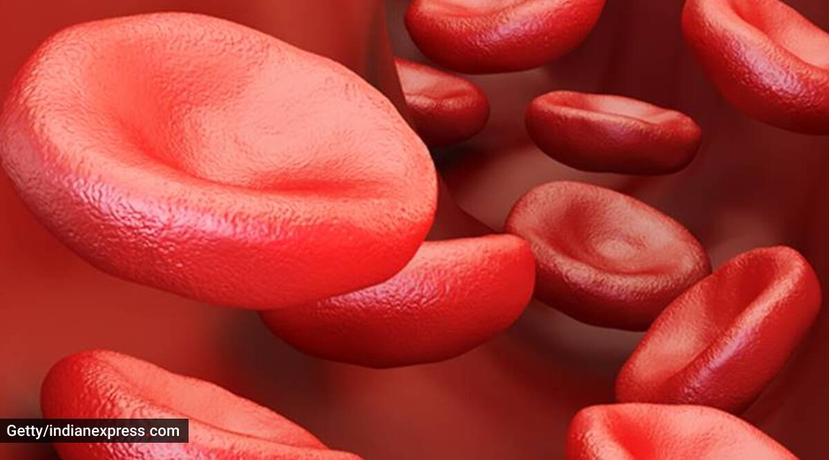 sickle cell disease, anaemia, indianexpress