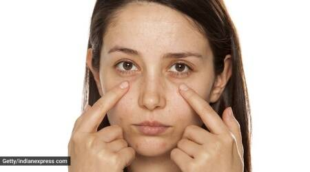 eye bags, under eye circle, indianexpress.com, indianexpress, tips, remedies, expert tips, natural remedies, nuska, face pack, potato for skin, skincare benefits,
