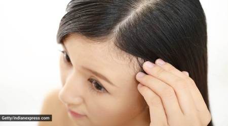 hair care, haircare, oily scalp, scalp greasiness, scalp oiliness, home remedies for oily scalp, indian express, indian express news