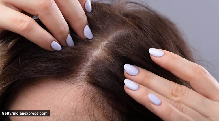 skincare, skincare tips, acne, acne problem, acne on scalp, how to take care of acne, home remedies for acne, indian express news