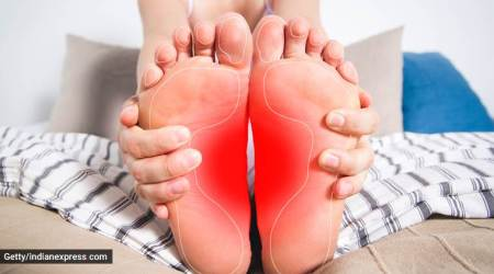 swelling of feet, swollen feet, how to get relief from feet swelling, home remedies for swollen foot, indian express, indian express news