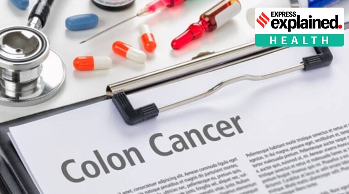 Explained All You Need To Know About Colon Cancer Explained News The Indian Express