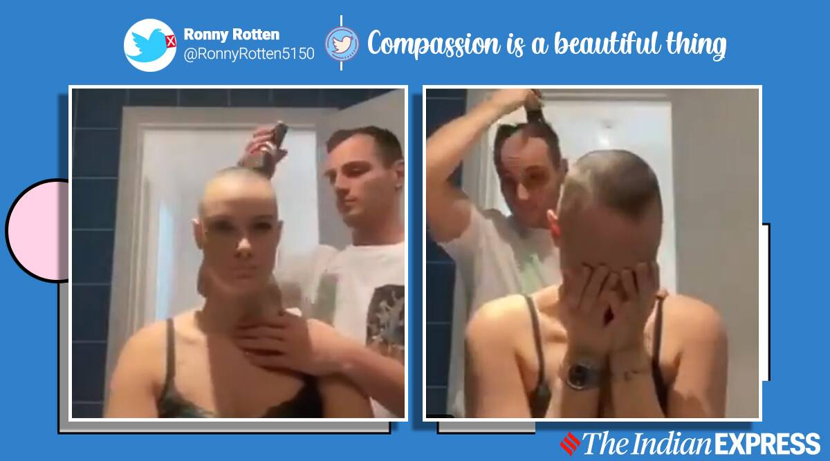 Man goes bald shaving girlfriend head who suffers from alopecia viral video, alopecia, hairloss, autoimmunity, trending, indian express, indian express news