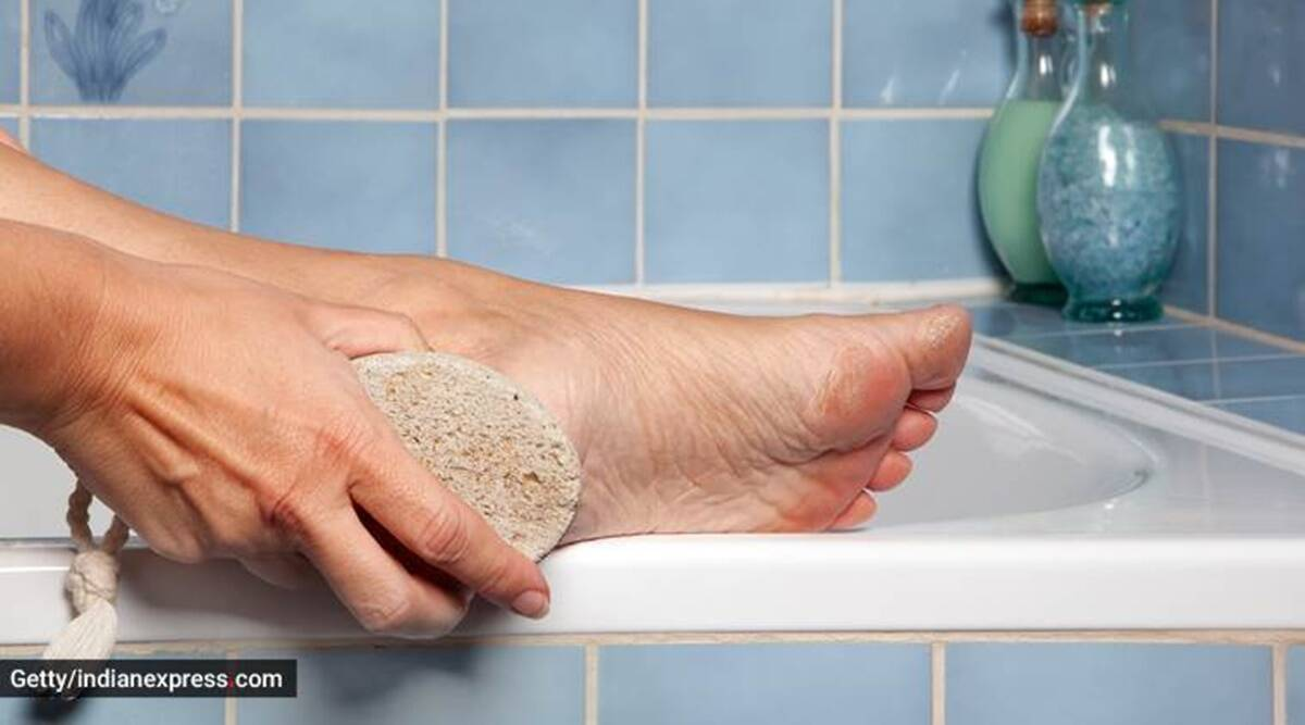 monsoon fungal infection, types of fungal infection, monsoon issues, monsoon health, ringworm, how to cure fungal infection, indianexpress.com, indianexpress, skincare tips, athlete's foot,
