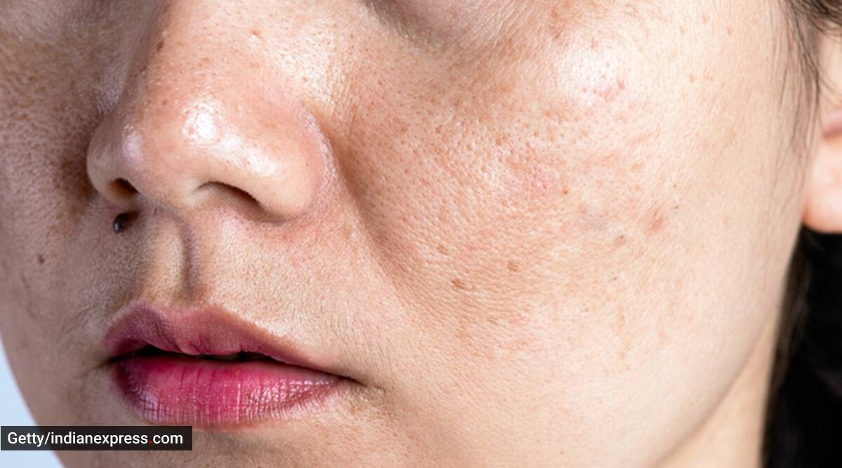 how to clean pores, pores on face, skincare routine, skincare tips, dr geetika mittal gupta, indianexpress, clogged pores,