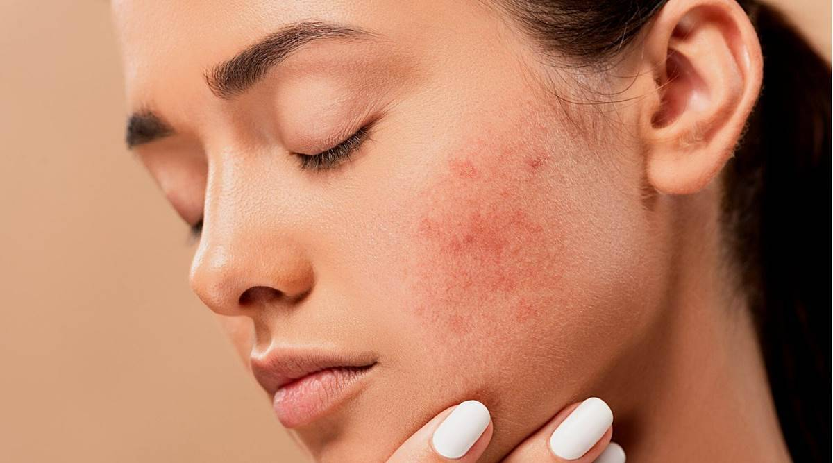 skincare, skincare routine for pimples, how to get rid of pimples, home remedy for pimples, skincare routine, indian express news