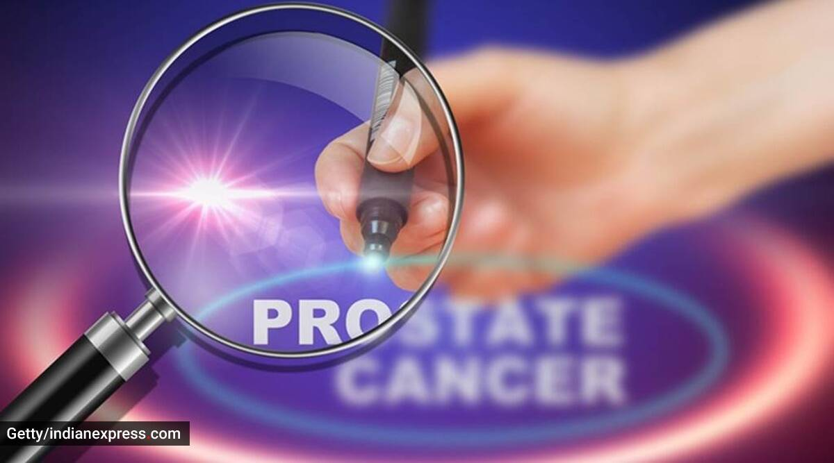 Prostate cancer, men and prostate, prostate issues, urine leakage and men, indianexpress.com, indianexpress