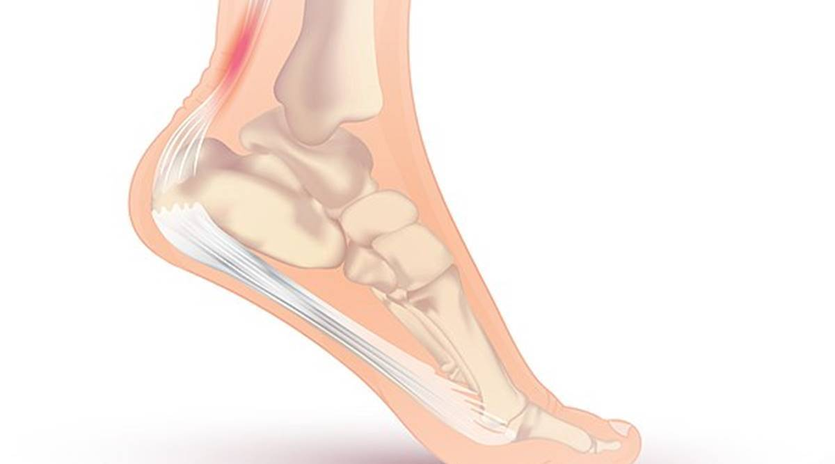 Achilles injury: Causes, symptoms and treatment