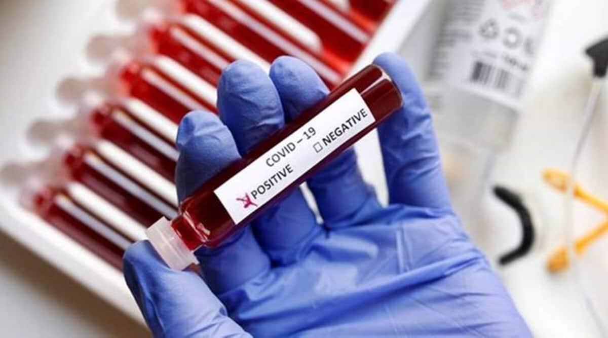 COVID-19 Testing, Coronavirus Test, Positive