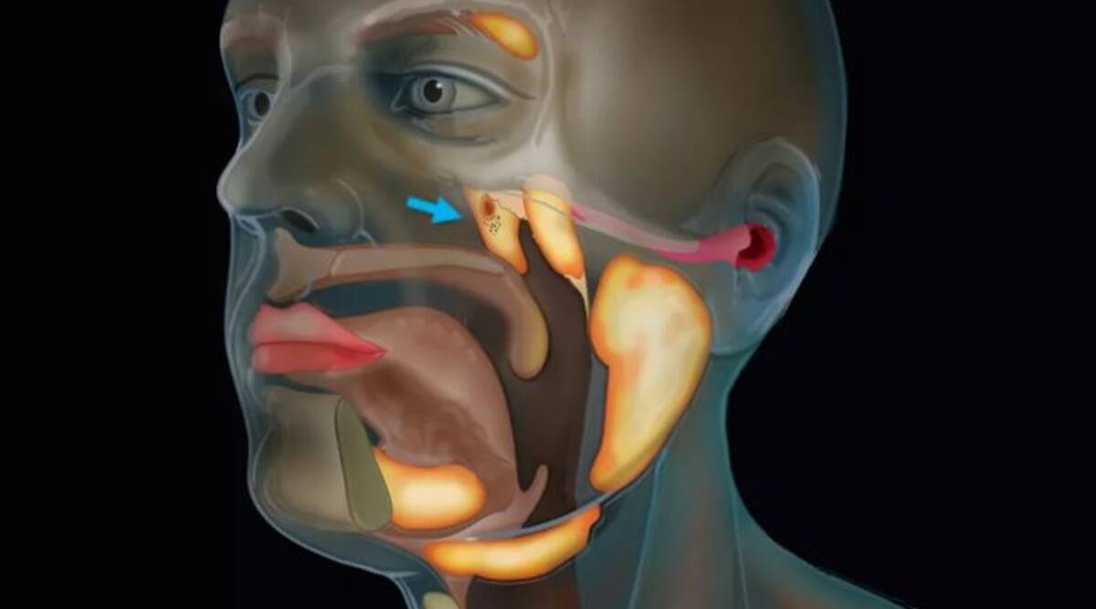 Scientists discover new organ in the human throat while studying prostrate cancer thumbnail