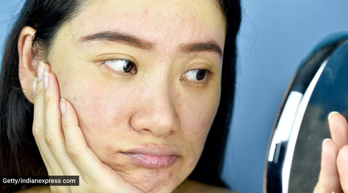glowing skin, how to reduce pigmentation, tips to reduce pigmentation, face pack to reduce pimple, what is pigmentation, how to reduce pigmentation, indianexpress.com, indianexpress, skincare, skincare hacks, skincare tips, dr geetika mittal gupta,