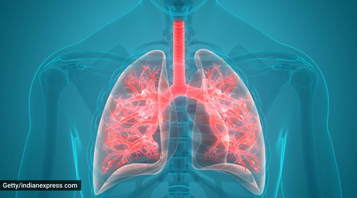 COPD day, world COPD DAY, what is COPD, Chronic Obstructive Lung Disease symptoms, Chronic Obstructive Lung Disease causes, Chronic Obstructive Lung Disease treatment, indianexpress, indianexpress.com