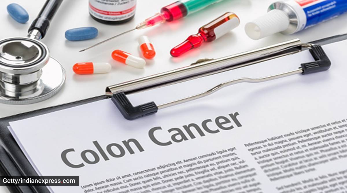 colon cancer, what is colon cancer, what causes colon cancer, colon cancer treatment, colon cancer screening, health, indian express news