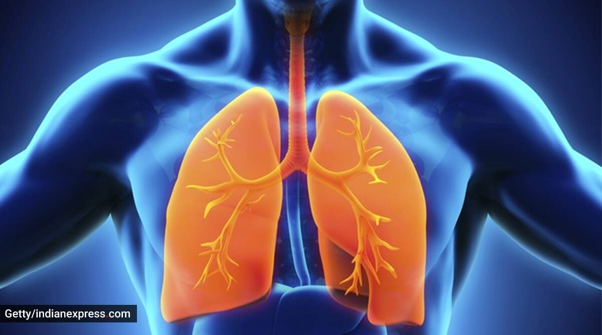 Covid pneumonia, all you need to know about covid pneumonia, indianexpress.com, indianexpress, what is covid pneumonia, pandemic, corona pneumonia, lung tissues,
