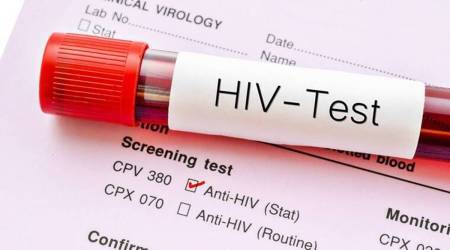 Ahmedabad news, HIV AIDS, COVID-19 AIDS, AIDS in India, Ahmedabad Municipal Corporation, AIDS suveillance India news, Indian Express