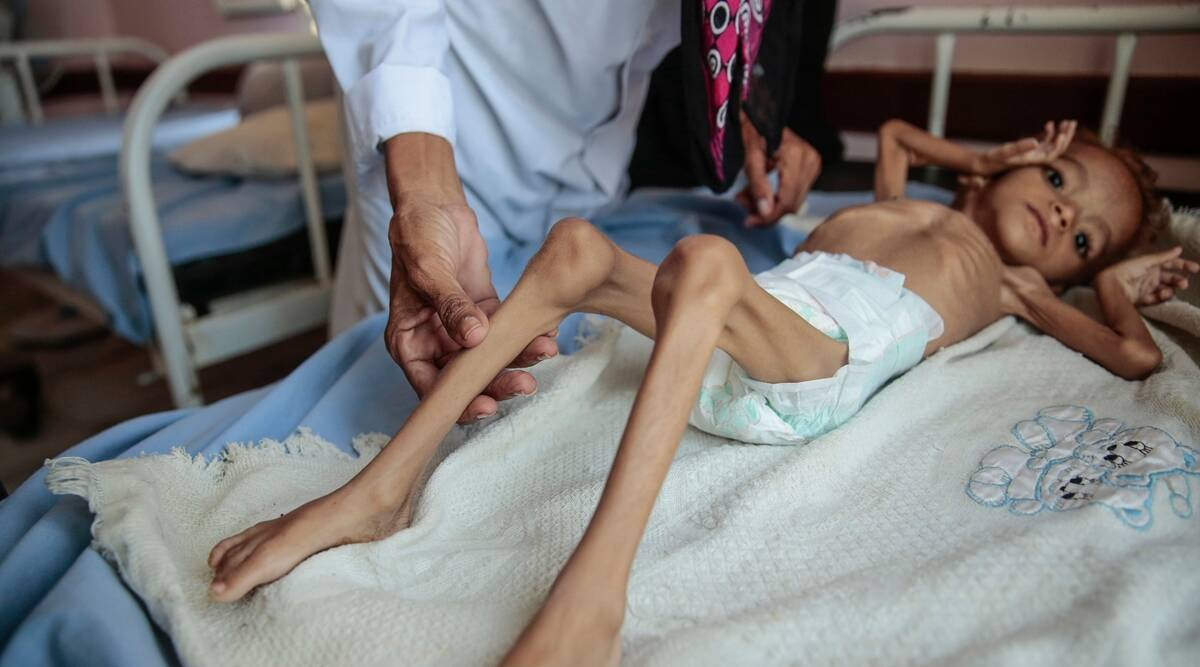 Yemen, famine, Yemen famine