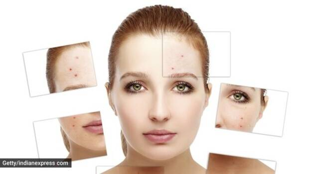 acne, skincare issues, how to fight acne scars,