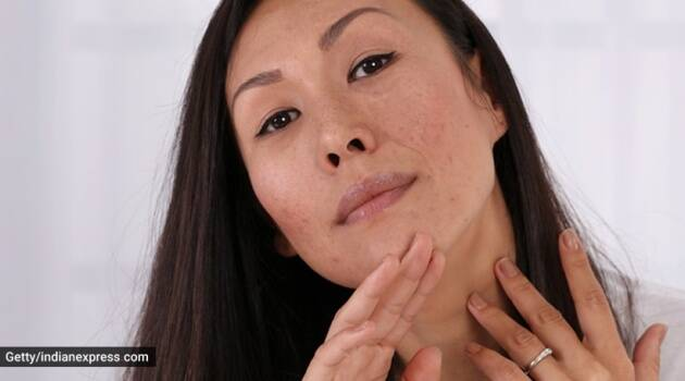 acne, skincare issues, how to fight acne scars, acne scar remedies, home remedies for acne scars, indianexpress.com, indianexpress