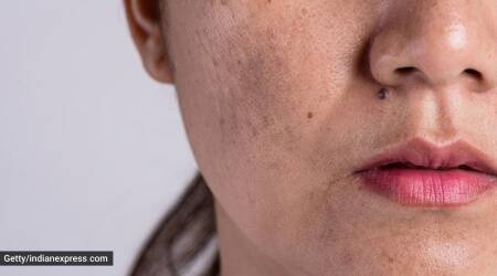 acne scars, how to get rid of acne scars,