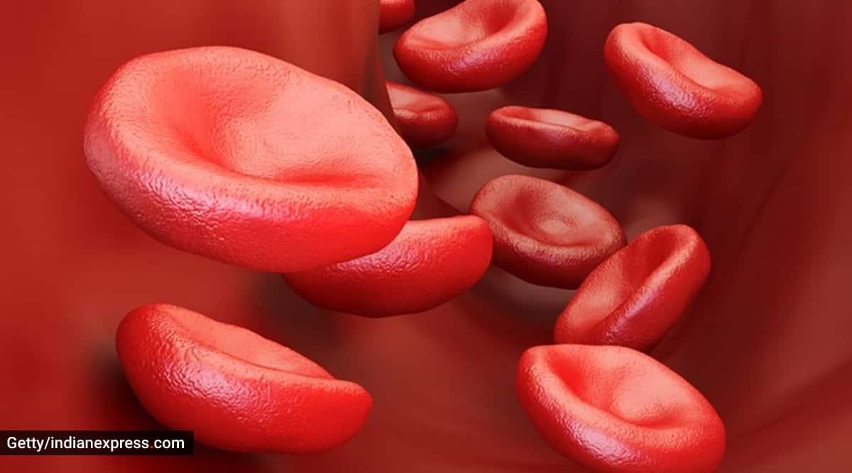blood cancer symptoms, kirron kher blood cancer, multiple myeloma types, multiple myeloma news, what is multiple myeloma, indianexpress, indianexpress.com,
