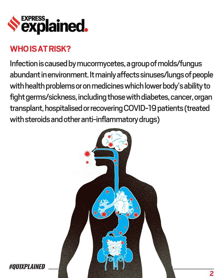 Black Fungus, Mucormycosis, What is Black Fungus, What Mucormycosis, Black Fungus cases, Black Fungus symptoms, Black Fungus treatment, Indian Express