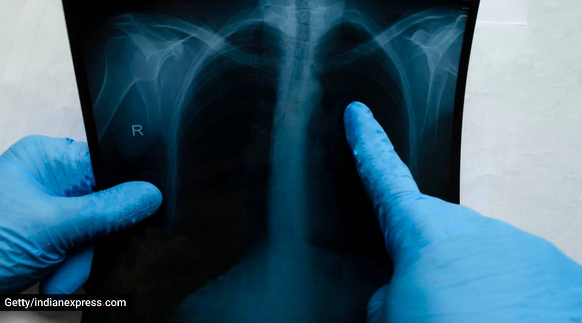 what is bilateral pleural effusion, what causes bilateral pleural effusion, treatment for bilateral pleural effusion, signs and symptoms of bilateral pleural effusion, dilip kumar bilateral pleural effusion, indian express news