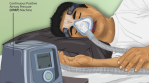 IIT-Ropar develops low cost, power-free device for high flow CPAP therapy
