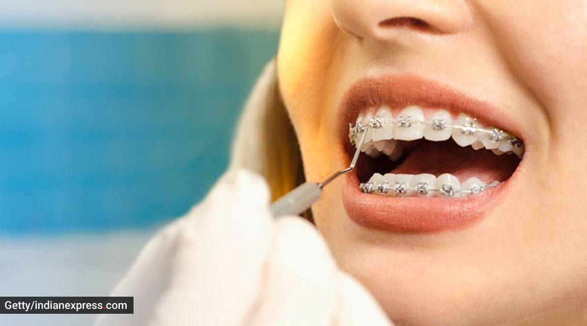 what are braces, when do you need braces, crooked teeth, teeth misalignment, signs that you need braces, can adults wear braces, dental health and hygiene, indian express news