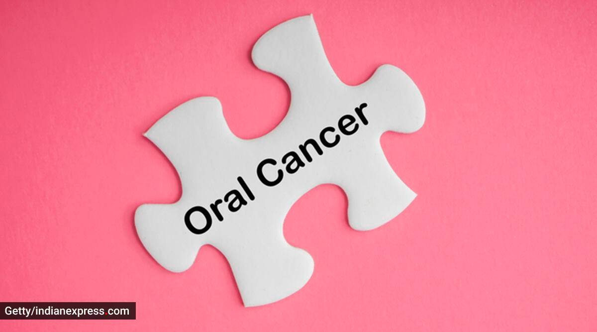 oral cancer, what is oral cancer, what causes oral cancer, poor oral hygiene and oral cancer, the importance of oral hygiene, indian express news