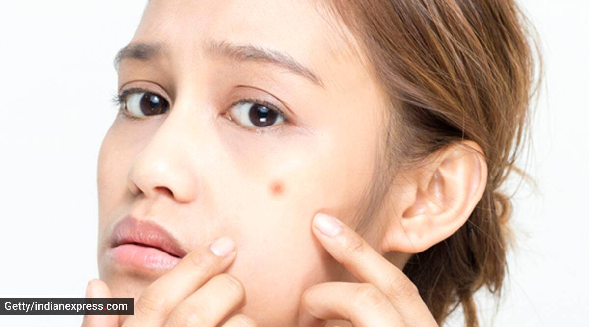 skincare, skincare routine, skin purging, what is skin purging, causes of skin purging, skin purging solution, how to take care of skin, indian express news