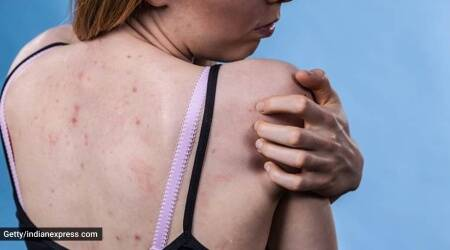 ayurveda, back acne ayurveda, tips to deal with back acne as per ayurveda, ayurveda tips to deal with back acne, indianexpress.com, back acne home remedies, what to do for acne,