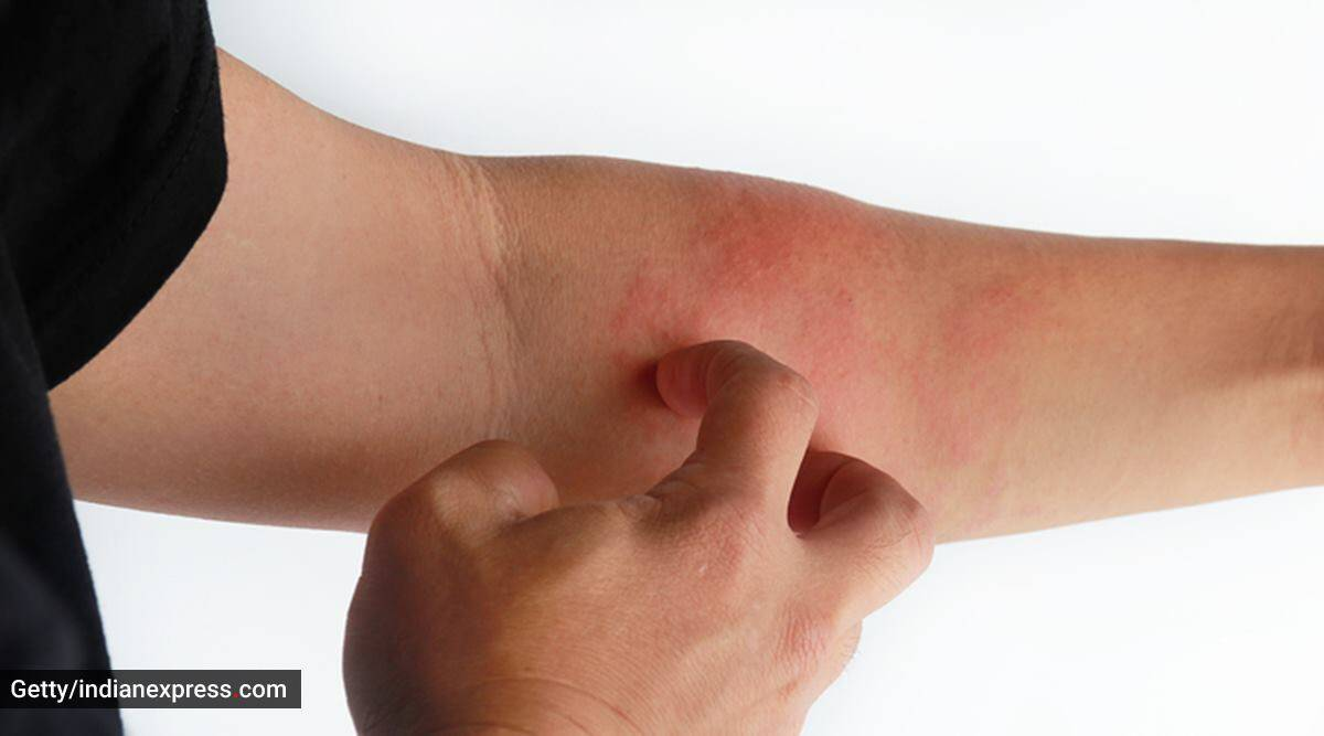atopic dermatitis (AD), what is atopic dermatitis, causes of atopic dermatitis, symptoms and treatment of atopic dermatitis, skin disease, skin infection, atopic dermatitis medicines, indian express news