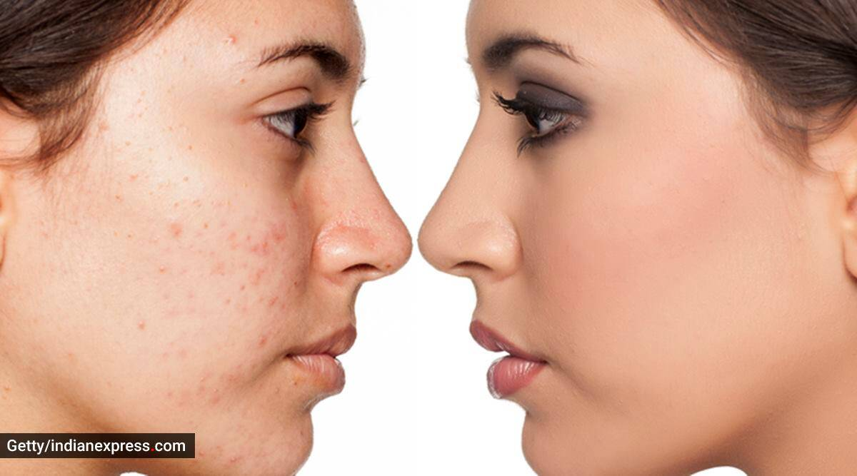skincare, skincare tips, what causes acne, everyday habits that can cause acne, bad skincare habits, how to get rid of acne problem, indian express news